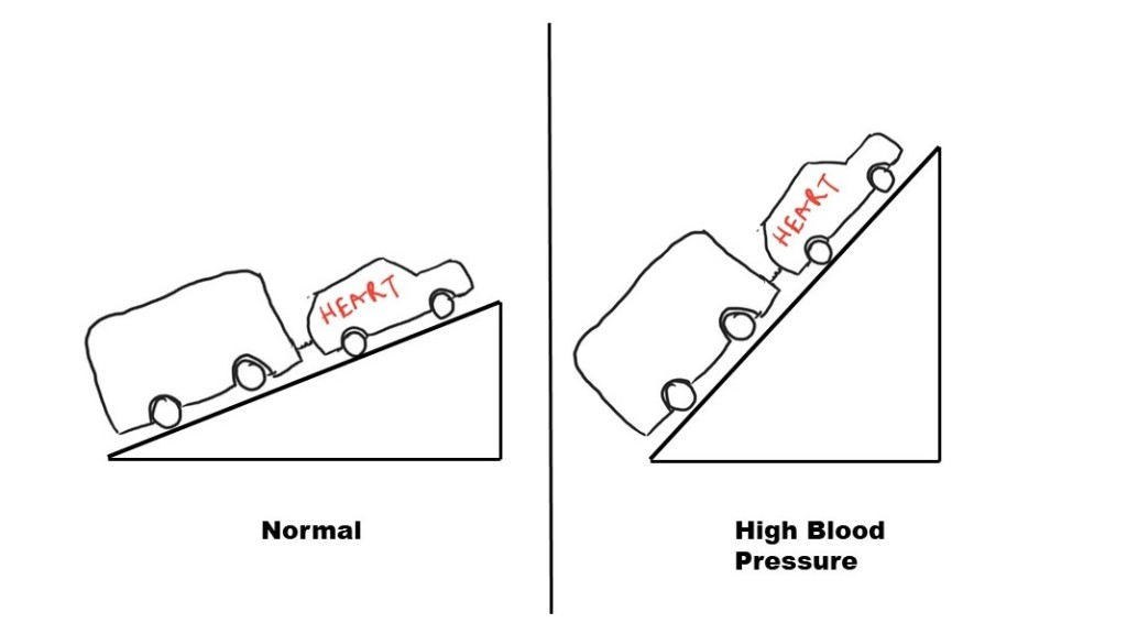 Figure 2:  As the blood pressure increases, the uphill task on the heart increases.