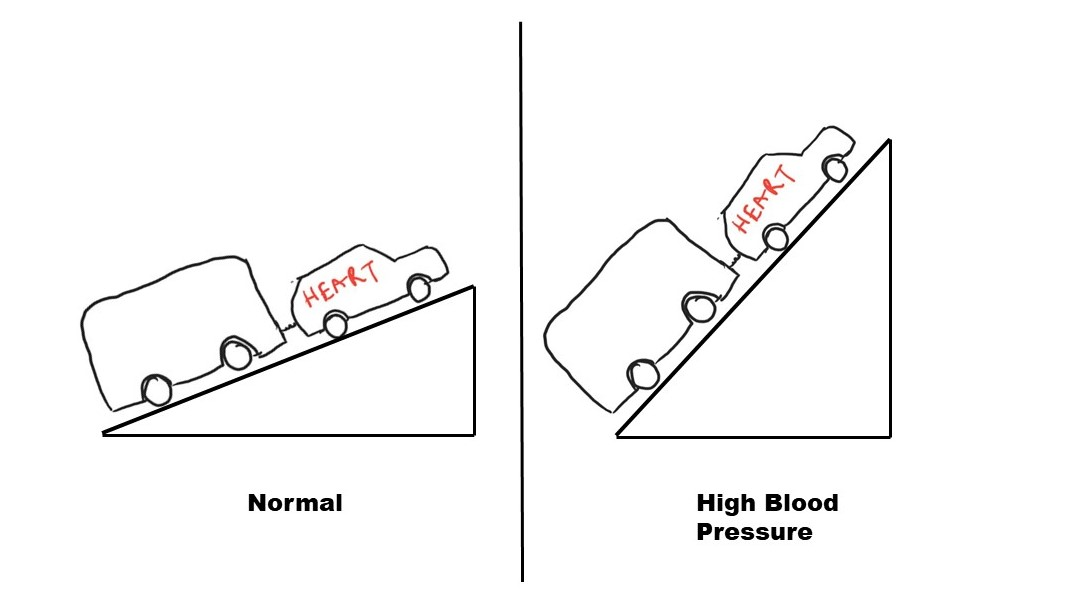 Figure 1: As the blood pressure increases, the uphill task on the heart increases.