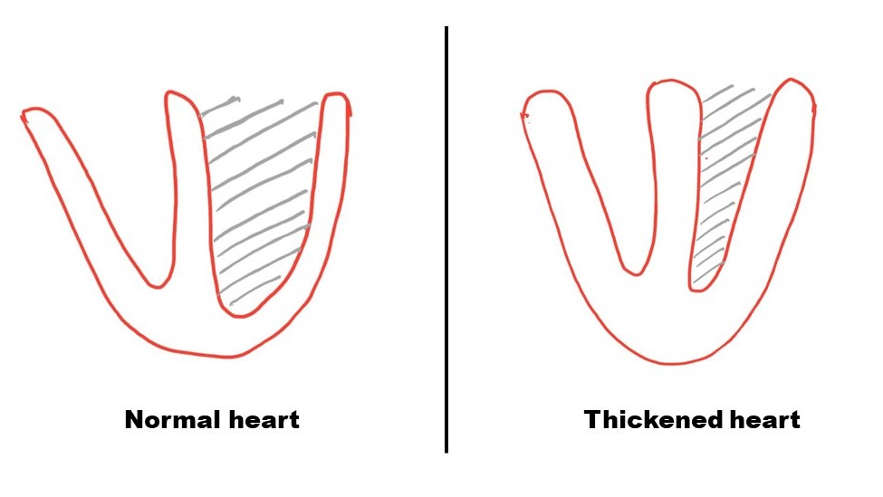Figure 3: Thickened heart does not relax fully to accept the blood. This causes backup of pressure in the entire system.