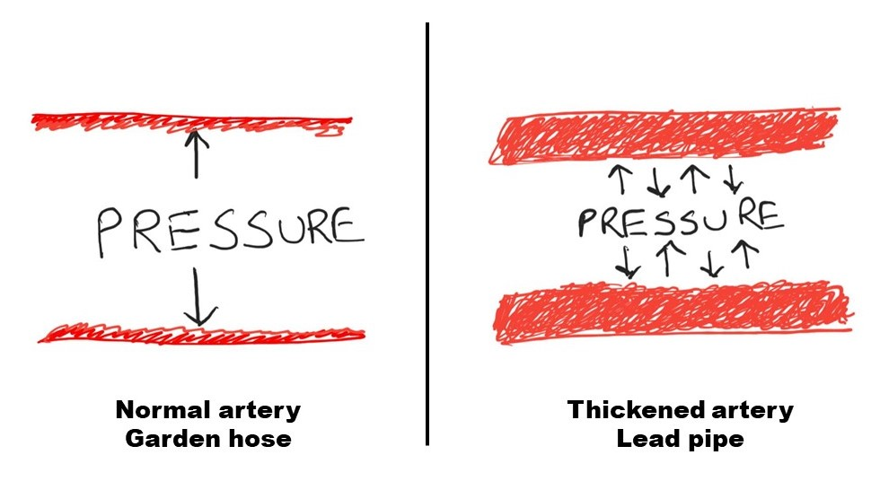 Figure 1: High pressure causes arteries to become thick, inflexible and in-expansible.